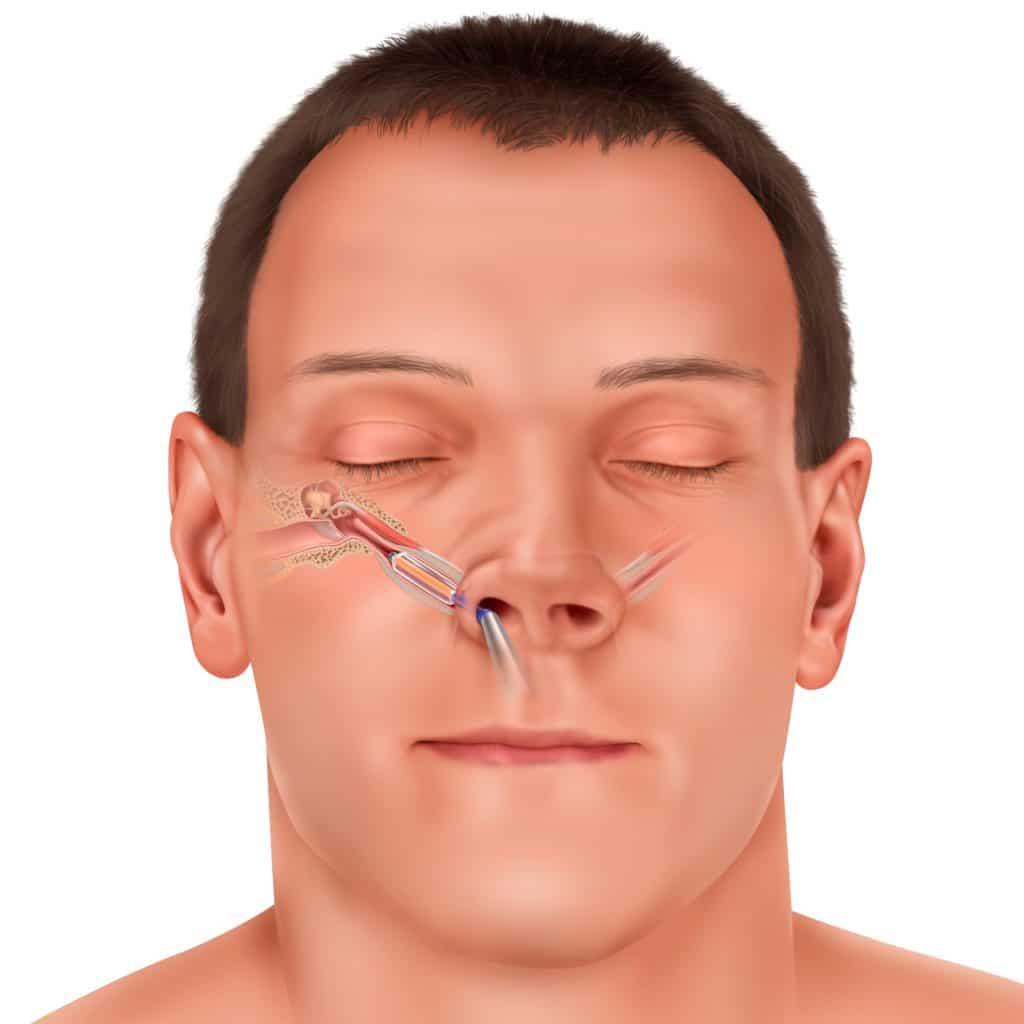 septoplasty post operative instructions